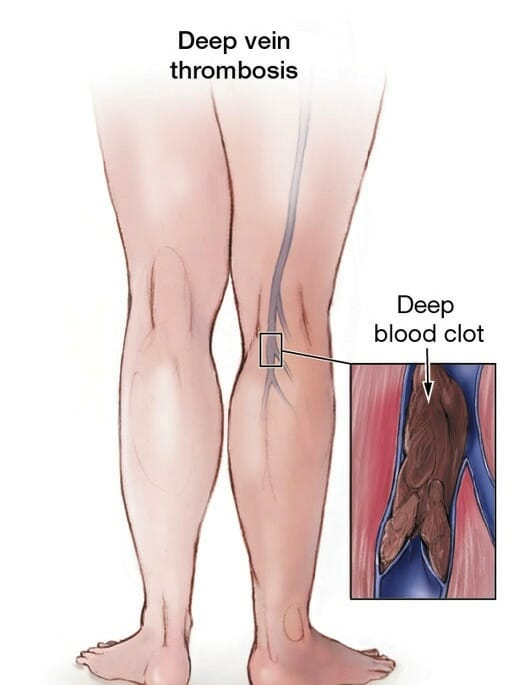 what is dvt? - nyc surgical, Human Body