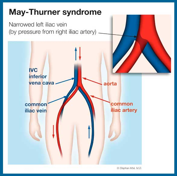may thurner syndrome