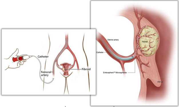 fibroid-embolization