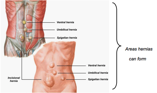 Hernia Information Nyc Surgical Associates