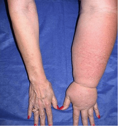 arm lymphedema caused by radiation surgery