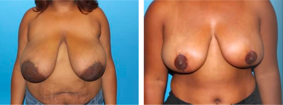 female-breast-reduction-patient-2
