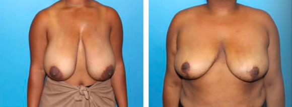 female-breast-reduction-patient-3
