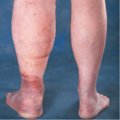A typical example of lymphedema with a significant venous component: