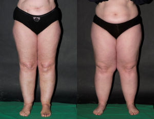 Lipedema pictures - what is lipedema?