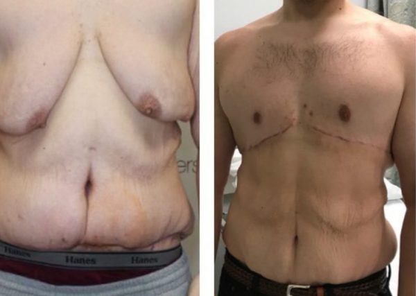 male-breast-reduction-patient-1