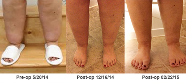 Lipedema Before & After Photos | NYC Surgical Associates